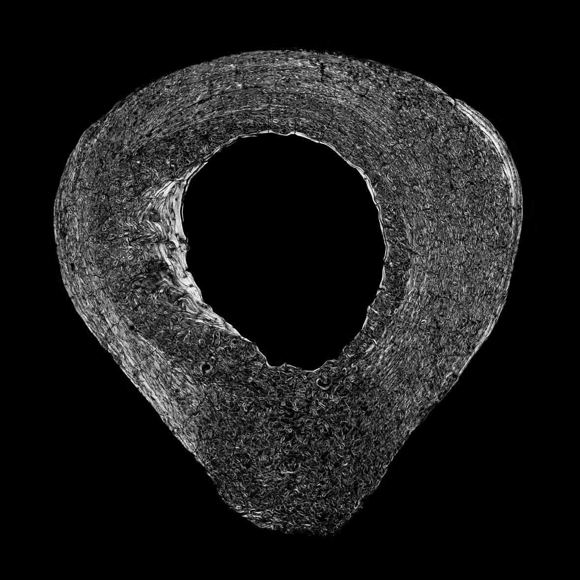 Human Femur Human femur polarized.jpg